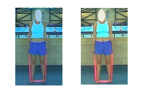 Elevación y descenso de hombros