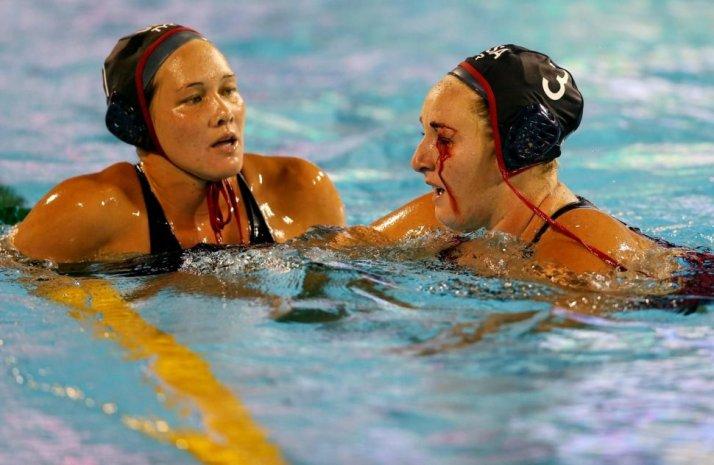 lesiones waterpolo